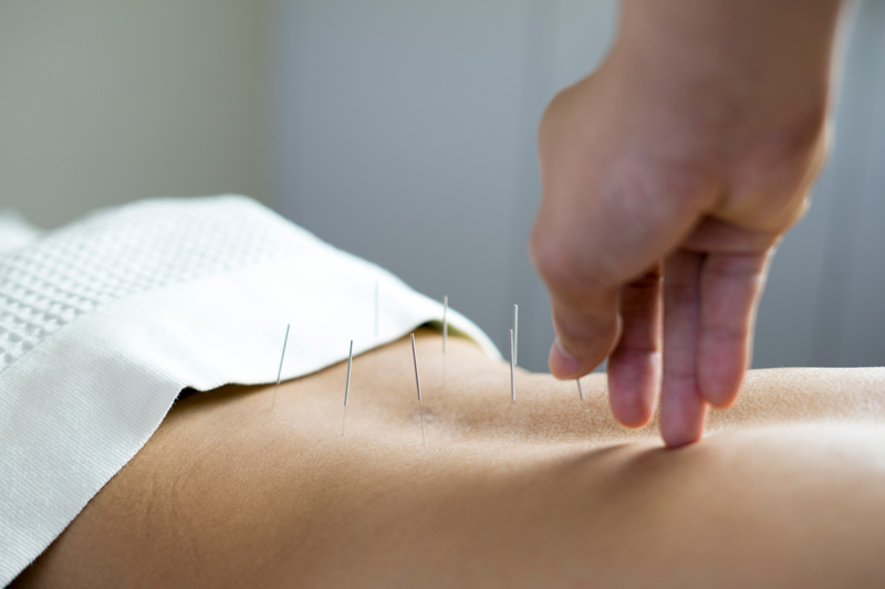 Female patient receiving acupuncture therapy on her back.